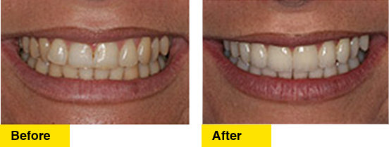 Before/After Upper Teeth Crowding