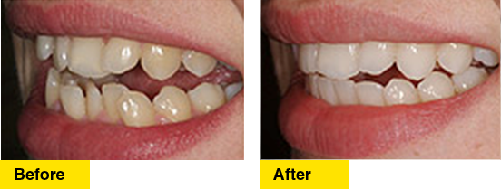 Before/After Protrusion