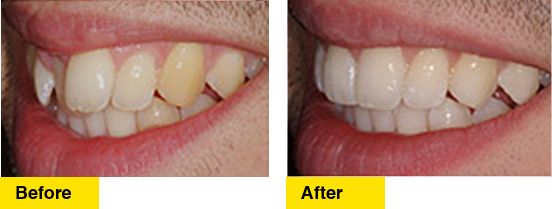 Before/After Crowding Lower Teeth